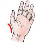 手根管症候群3