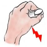 母指橈側側副靭帯損傷