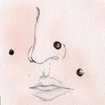 母斑細胞性母斑