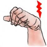 尺側手根伸筋腱腱鞘滑膜炎